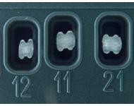 GLASFASERBRACKETS RICKETTS OBER- UND UNTERKIEFER